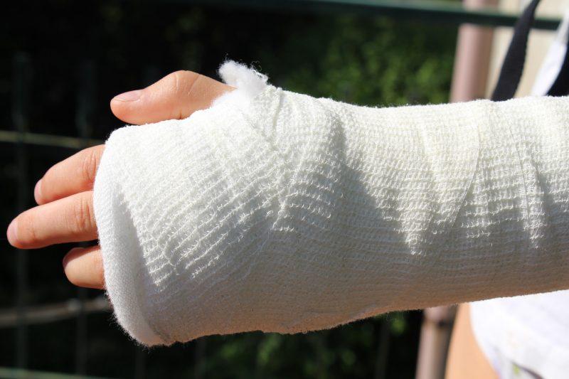 gips-hand