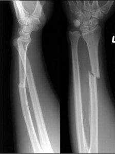 https://radiopaedia.org/cases/galeazzi-fracture-dislocation