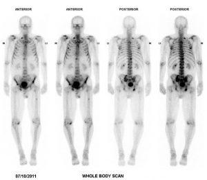 Case courtesy of Dr Zeyad Al-Ogaili, Radiopaedia.org, rID: 24878